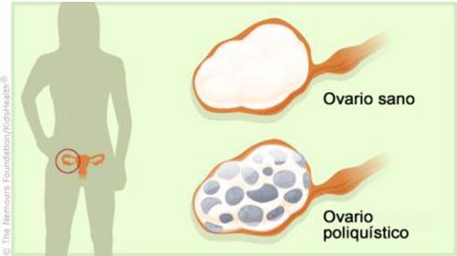síndrome-ovarios-poliquisticos-clinica-silvia-monlins